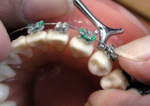 Aparato dental para niños: brackets
