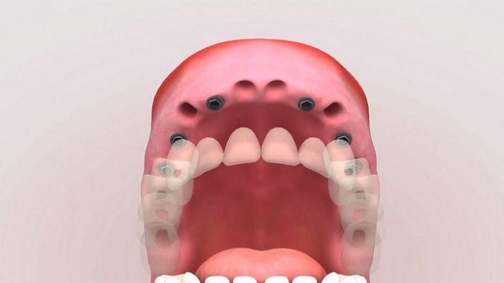 Hilo dental para limpieza